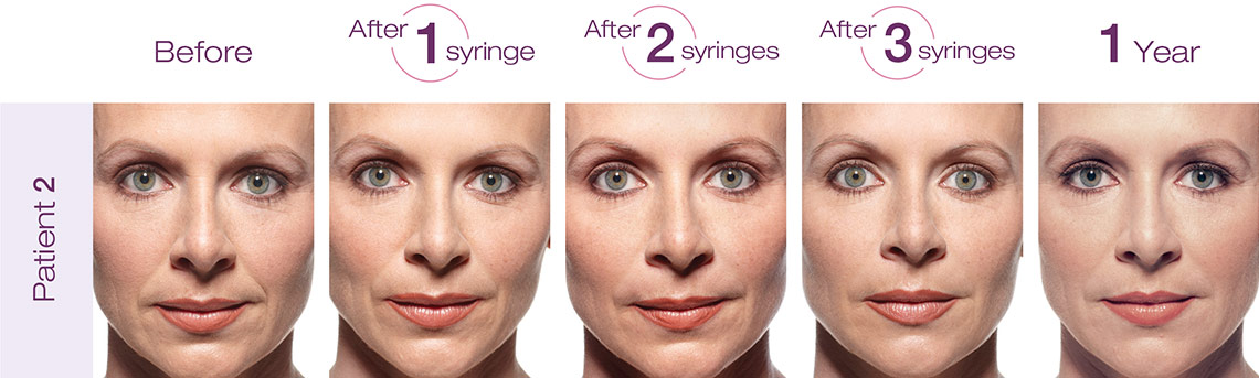 Injectables: Wrinkle Smoothing, Facial Fillers, Botox