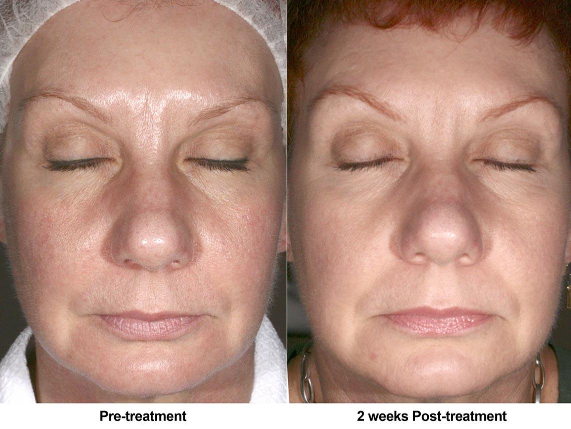 Skin Redness Rosacea Body Face Murfreesboro Tn