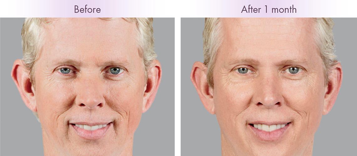 Injectables Wrinkle Smoothing Facial Fillers Botox