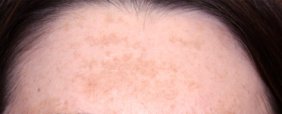 Skin Brown Spot Treatments Body Amp Face Murfreesboro Tn