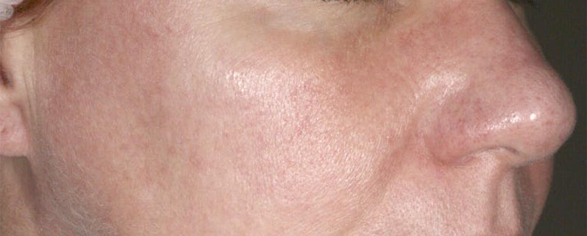 Redness / Rosacea
